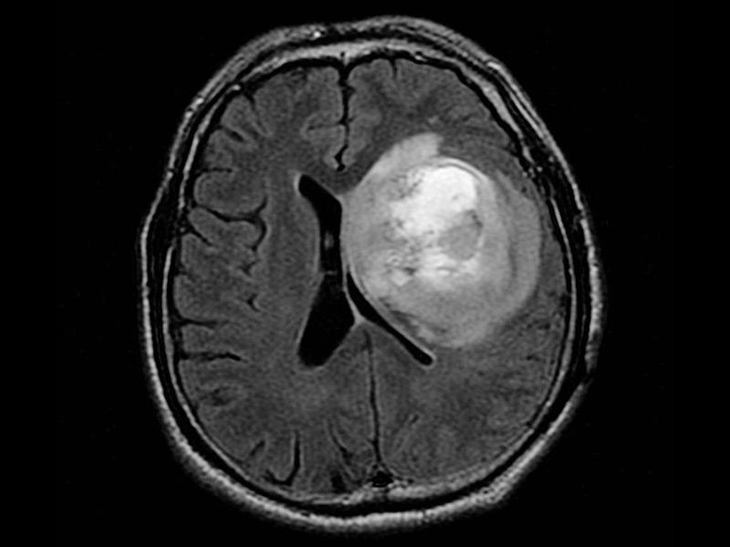 طراحی اطلس سرطان مغز برای کمک به درمان گلیابلاستوم